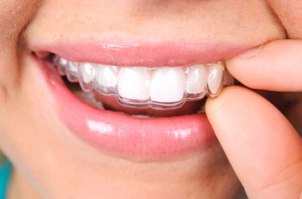 Woman using clear aligner from Advanced Family Dentistry in Muncie, IN